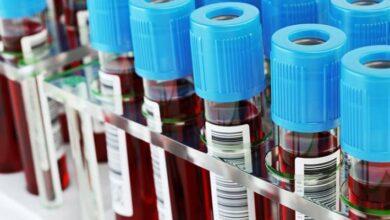 Photo of COVID-19: Un análisis de sangre detectaría riesgo de morir por coronavirus
