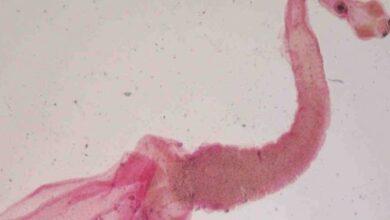 Photo of Mujer tenía un intenso dolor de cabeza: eran larvas en su cerebro