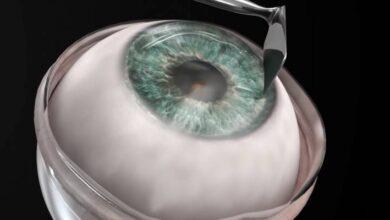 Photo of Hombre de 78 años, declarado legalmente ciego, recupera la vista tras implante de córnea artificial