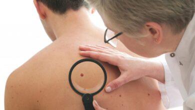 Photo of Hombres con altos niveles de testosterona son más propensos a desarrollar cáncer de piel