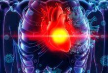 Photo of Estudio científico sugiere que el coronavirus podría causar la muerte células cardíacas
