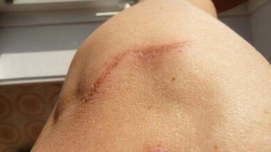 Photo of La curación de heridas sin dejar cicatrices avanza y por ahora la investigación apunta a un fármaco que funcionó en animales