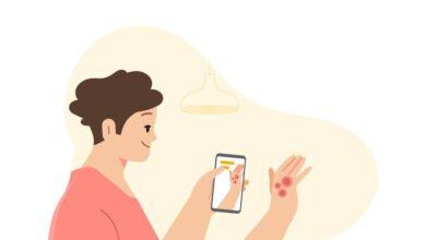 Photo of Google podrá detectar enfermedades en la piel a través de la cámara del móvil
