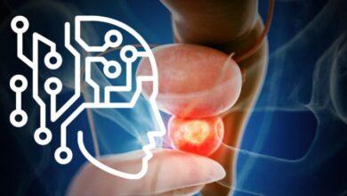 Photo of Detectar el cáncer de próstata en segundos ya es posible